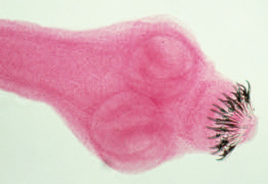 pork tapeworms Pork tapeworms are parasitic flatworms that use pigs as intermediate hosts but complete their life cycle in humans infection in humans occurs through ingestion of.