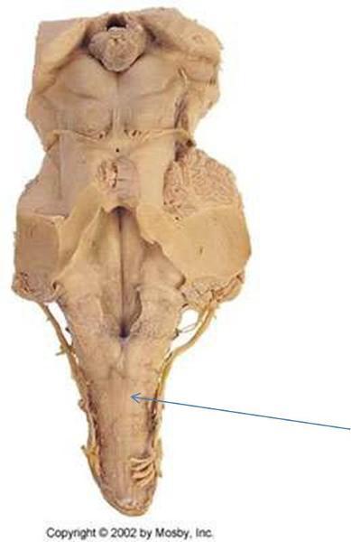 print neuro lab block i brain stem gross anatomy
