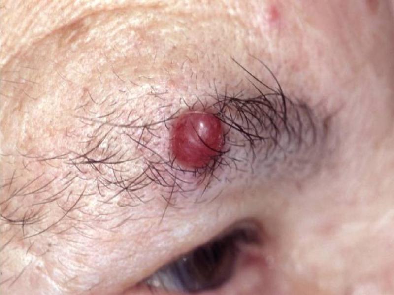 Восстановление девственной плевы (гименопластика).  Рак шейки матки.