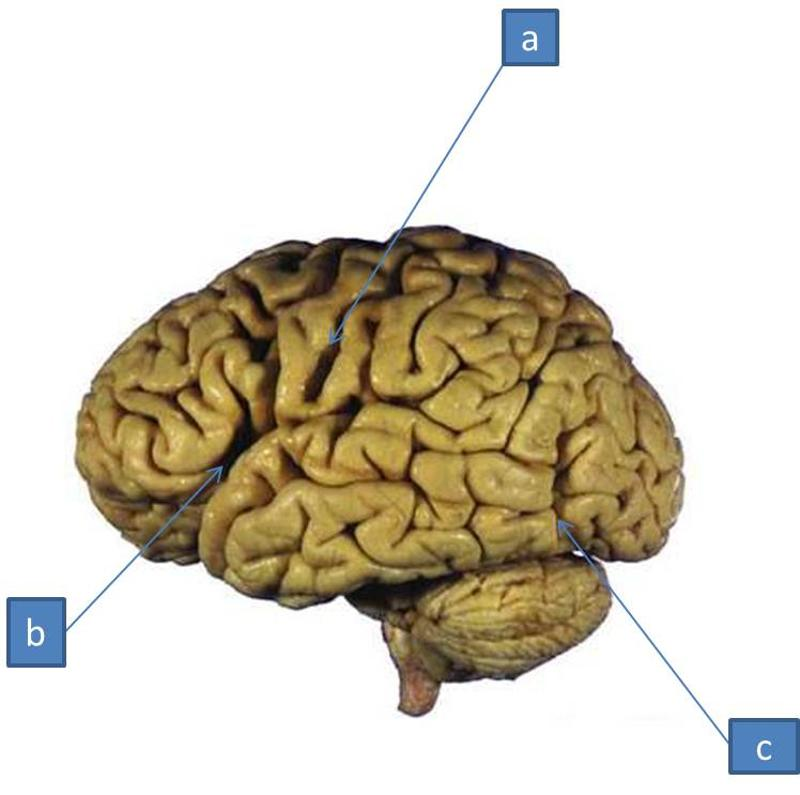 print neuro lab block i- brain stem gross anatomy flashcards, Human Body