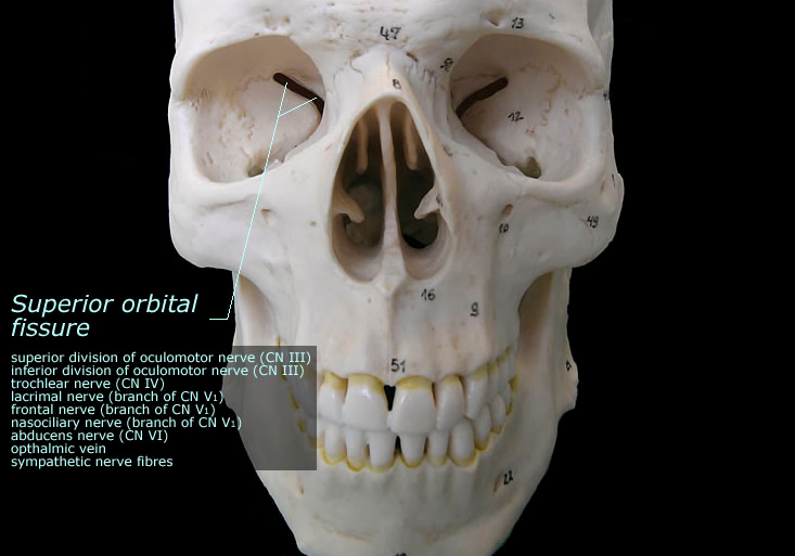orbids of the skull Which projection of the skull will demonstrate the petrous ridges in the orbits, the ethmoid and frontal sinuses, and the crista galli.