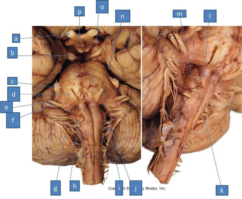 Print Neuro Lab Block I- Brain Stem Gross Anatomy flashcards | Easy ...
