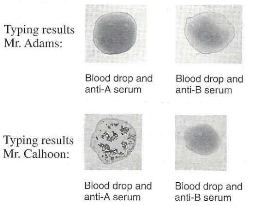 Ume The Blood Of Two Patients Has Been Typed For Abo Type On Basis ...