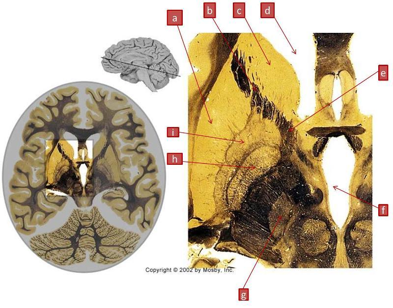 Print Neuro Lab Handouts Block III flashcards | Easy Notecards