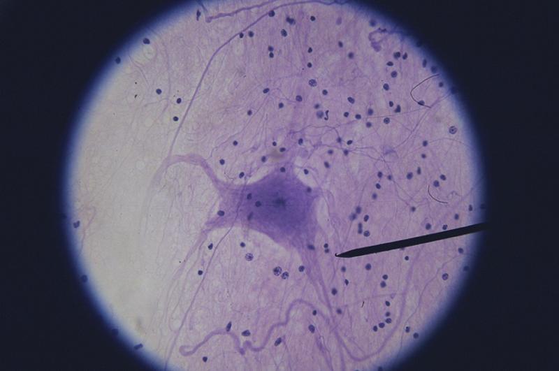 activity 3  nervous tissue and examining nervous tissue