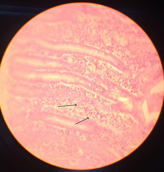 Activity 2: Connective Tissue and Examining Connective ...