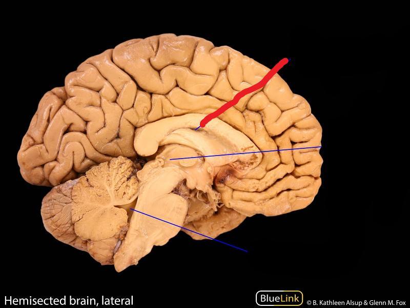 Anatomy of brain ventricles