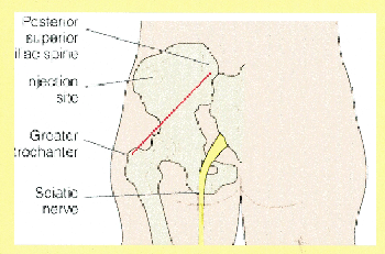 Injections sites Flashcards | Easy Notecards