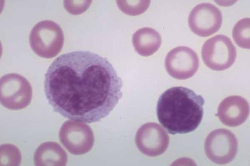 моноцит фото под микроскопом калетник показывает любимое