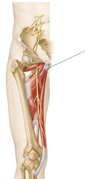 Print Anatomy Block III- Gluteal Region, Thigh ...
