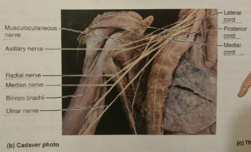 Superior Gluteal Nerve Cadaver 6382 | USBDATA