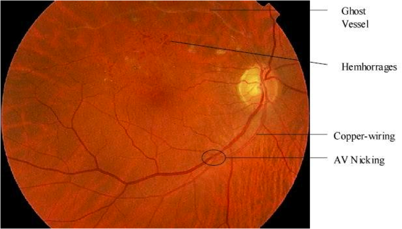 Retinopathy fundoscopy hypertensive