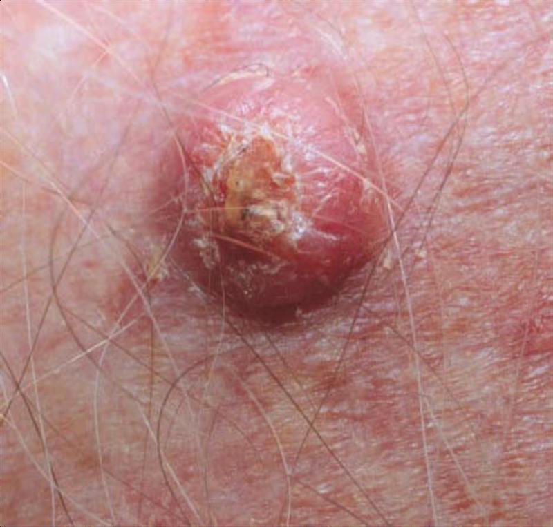 Print 04 Dermatology Cutaneous Malignancies Flashcards