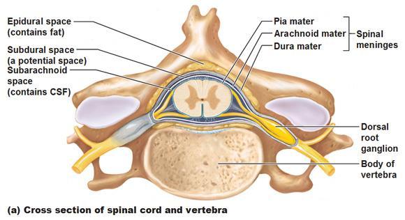 lumbar translaminar epidural steroid injection