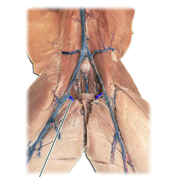 fantastic voyage femoral vein You have been injected into the femoral vein of a healthy female the alert just came out that a bacterium is invading the lower lobe of the right lung.