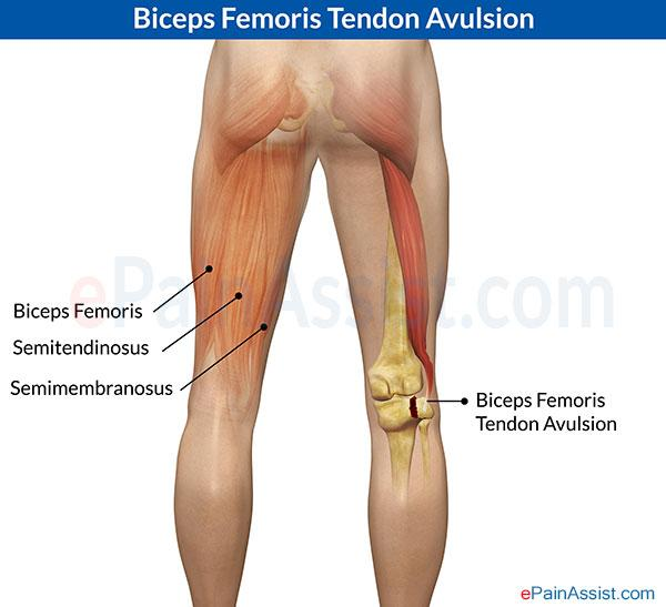 Las relaciones anatómicas importantes en las extremidades inferiores ...