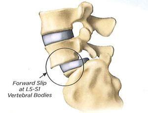 pars defect without listhesis What is a spondylo-listhesis this is when one vertebra starts to slide off the top of the pars defect disc bulge and slip pushing on nerve root degenerate facet joint disc bulge duced in any form without prior permission from the pub-lishers.