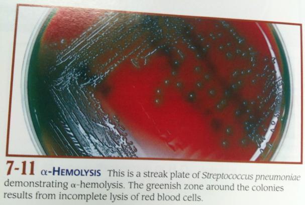 Blood Agar- Alpha hemolysisStreptococcus Salivarius Hemolysis