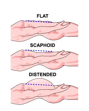 scaphoid abdomen)