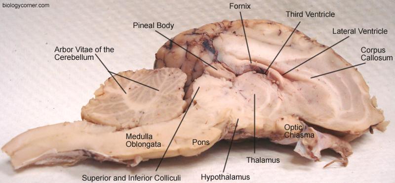 Choroid Plexus Sheep Brain