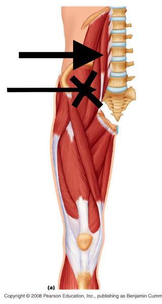 psoas minor a assists psoas major with flexion of lumbar spine not a ...