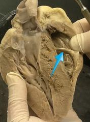 Sheep heart anatomy moderator band
