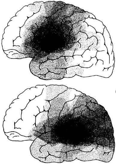 Print Neuro Block III- Language and Aphasia flashcards   Easy ...