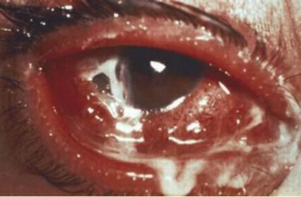 steroid drops for viral pink eye