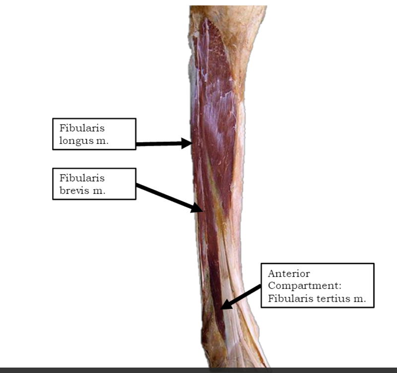 Coronal section through right ankle and subtalar joints Label for Peroneus brevis is at right third from the bottom